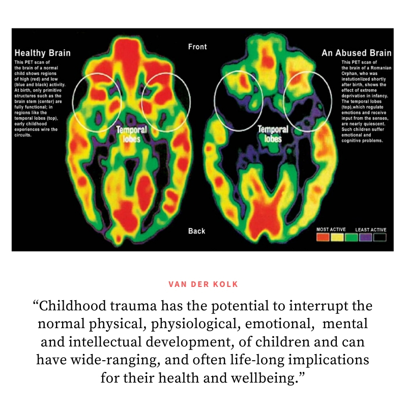 scan brain child with trauma